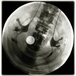 Jazz on Bones X-Ray Plates