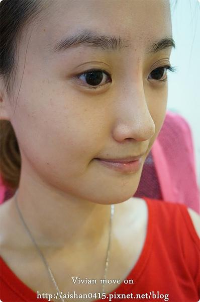 晶亮瓷,微晶瓷,微晶瓷隆鼻,微晶瓷價格,山根,