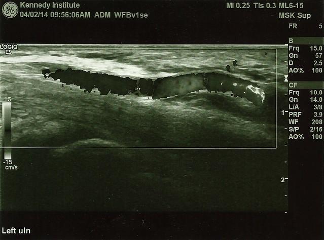 Monochrome wrist sonogram