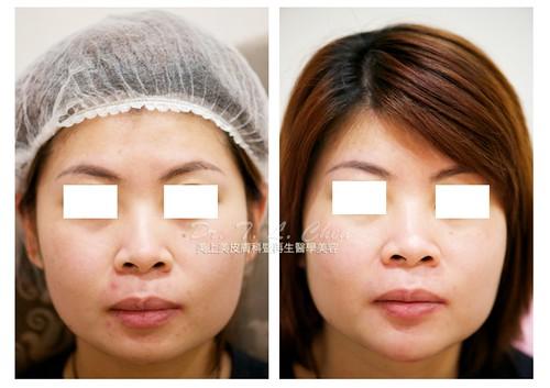 美上美醫學美容莊盈彥醫師利用玻尿酸幫客人遡造更精緻的下巴。