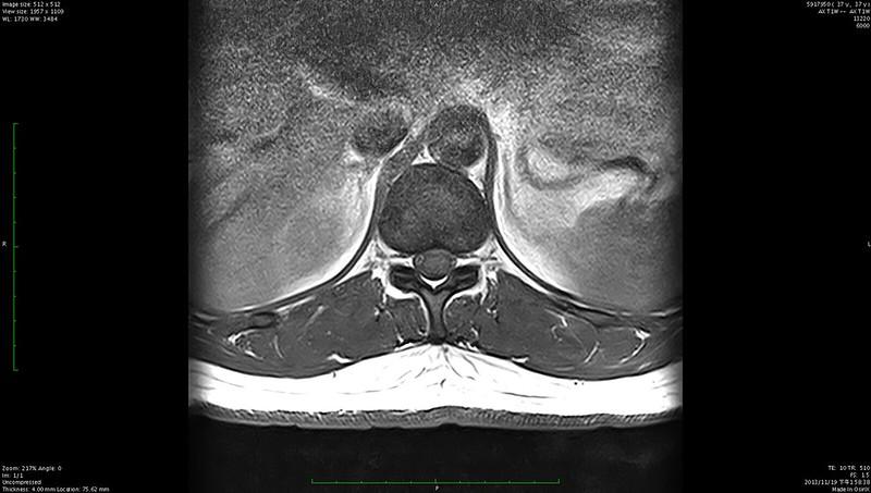 開刀前MRI檢查