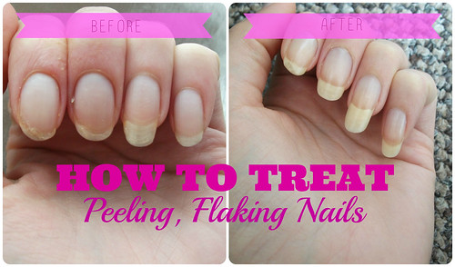 How To Treat Peeling Flaking Nails