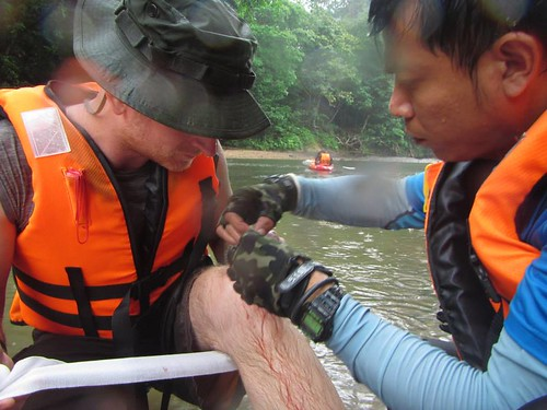 Greg Rodgers getting his kayaking injury patched in Borneo