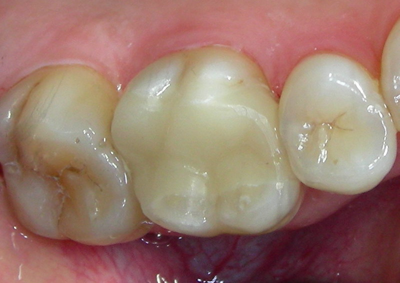 Fachartikel: Zahn-Inlays & -Onlays