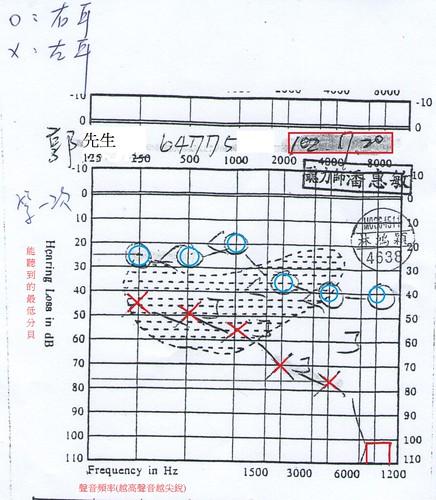 郭先生第一次聽力測驗圖