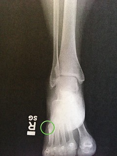 X-ray of fractured metatarsal