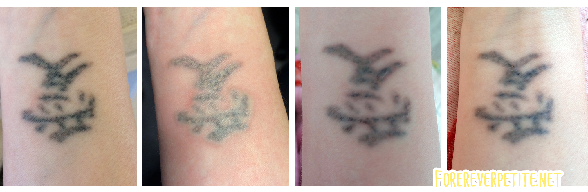 Tattoo Verwijderen Sessie 4 Foreverpetite