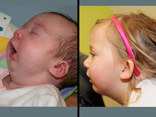 This child was born with a very small jaw (Pierre Robin Sequence) making it very difficult for her to breathe. Eventually, a breathing tube had to be placed to prevent her from choking. In order to avoid a tracheostomy (hole placed in throat), she had her jaw stretched out to bring her tongue forward and improve her airway (distraction osteogenesis). The postoperative photo shows her at 3 years of age with excellent growth of her jaw and minimal scarring.  For more information on plastic surgery at St. Louis Children's Hospital, visit www.stlouischildrens.org/our-services/plastic-surgery.