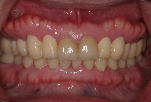 台中黃經理牙醫診所-陳柏均醫師-全口全瓷冠重建案例4