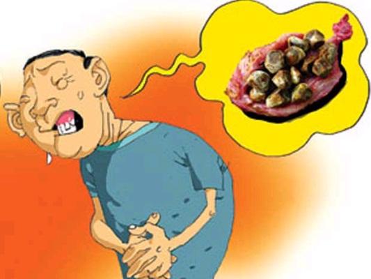 Sỏi mật do mất cân bằng hệ vi khuẩn đường ruột
