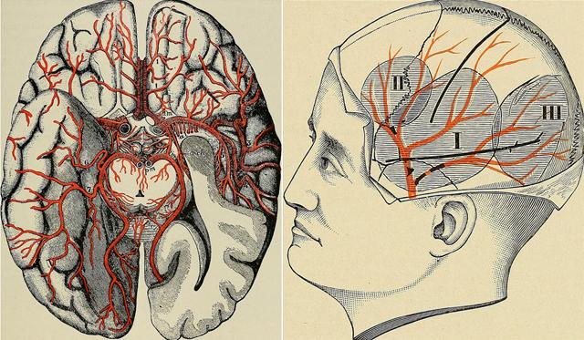 cerebrosviejos