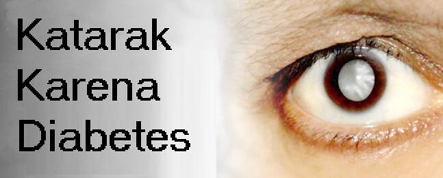 Cara Mengobati Mata Katarak Karena Diabetes