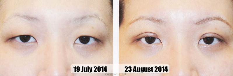 Suanie double eyelid surgery - Day 36
