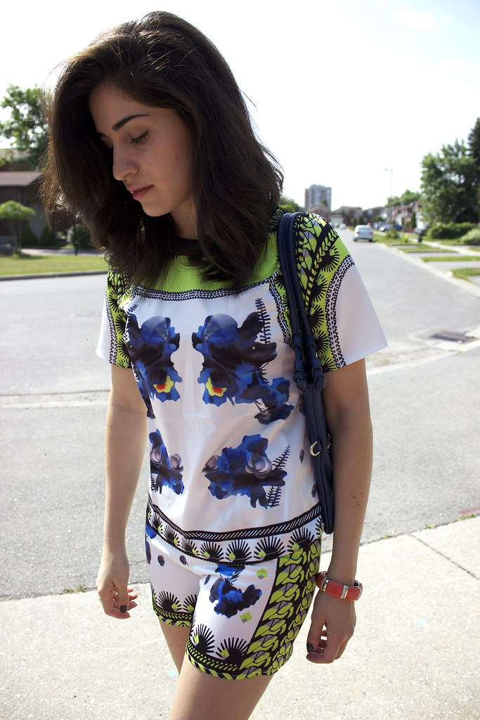 fashionblogger,toronto,outfit,shorts