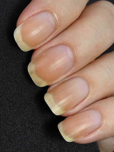Pure Nail Oil - 3-day hydration treatment (before)