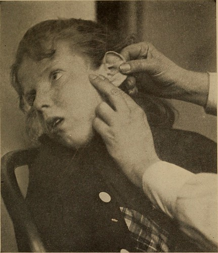 Can Ear Wax Cause Deafness?
