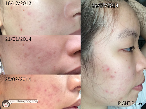 AcneFree_Face Progress (Right)
