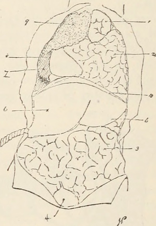 Image from page 109 of American medical digest. (1886)