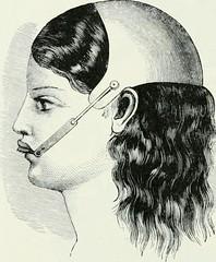 """Image from page 375 of """"Lehrbuch der orthodontie fur studierende und zahnartze mit enschluss der geschichte der orthodontie"""" (1906)"""