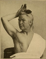 "Image from page 218 of ""Postoperative treatment; an epitome of the general management of postoperative care and treatment of surgical cases as practised by prominent American and European surgeons"" (1907)"