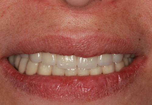 台中黃經理牙醫診所-氧化鋯全瓷冠假牙植牙重建 (13)