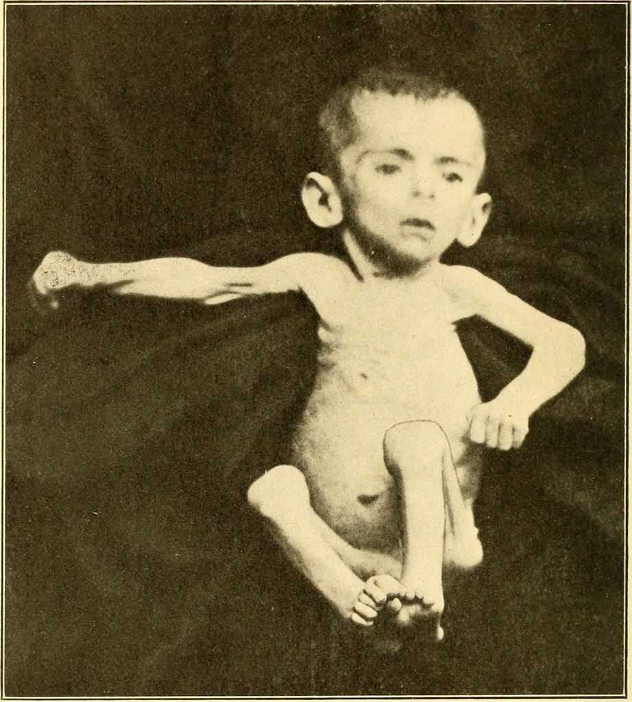 Image from page 511 of Modern diagnosis and treatment of diseases of childern; a treatise on the medical and surgical diseases of infancy anf childhood (1911)