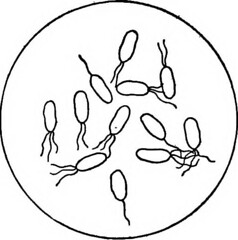 infección por hongos