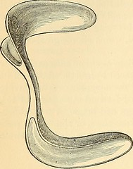"Image from page 937 of ""The principles and practice of surgery"" (1872)"