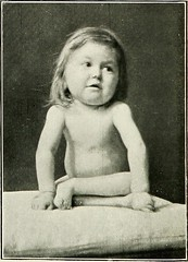 "Image from page 87 of ""The medical diseases of children"" (1911)"