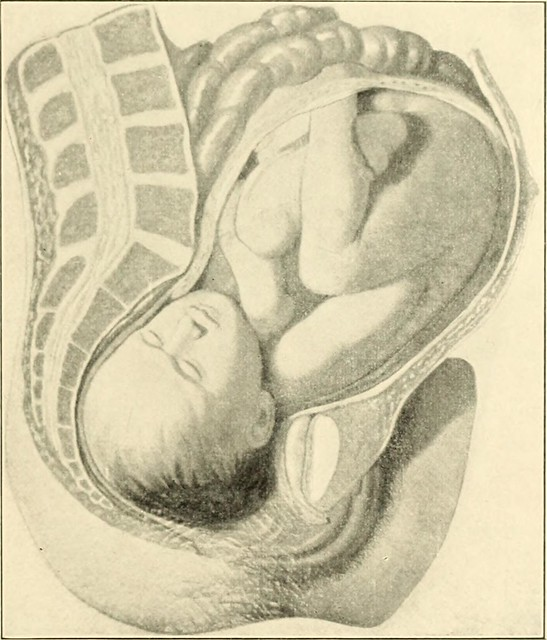 "Image from page 382 of ""A textbook of obstetrics"" (1899)"