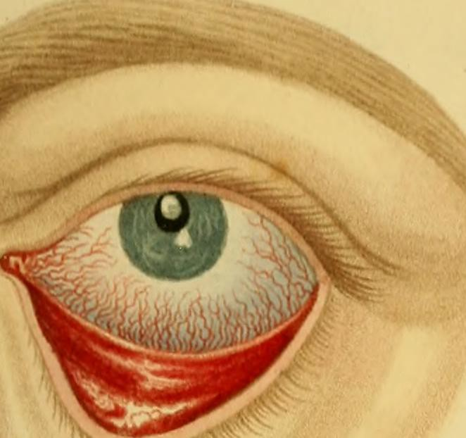 "Image from page 598 of ""Lectures on operative surgery of the eye, or, An historical and critical inquiry into the methods recommended for the cure of the cataract for the formation of an artificial pupil, &c. &c. &c. : containing a new method of operating"