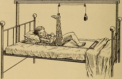 """Image from page 397 of """"Postoperative treatment; an epitome of the general management of postoperative care and treatment of surgical cases as practised by prominent American and European surgeons"""" (1907)"""