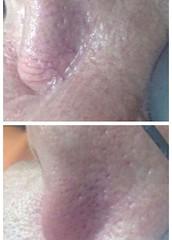 rosacea natural treatment illinois