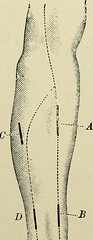 "Image from page 457 of ""Minor surgery and bandaging; including the treatment of fractures and dislocations, the ligation of arteries, amputations, excisions and resections, intestinal anastomosis, operations upon nerves and tendons, tracheotomy, intubatio"