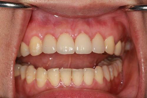 黃經理牙醫診所 賴盈利醫師的全瓷冠治療13
