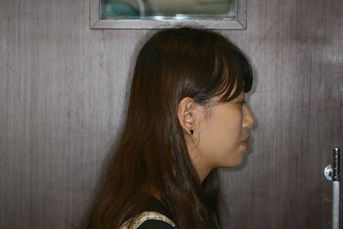 台中黃經理牙醫診所賴怡妏醫師牙齒矯正14