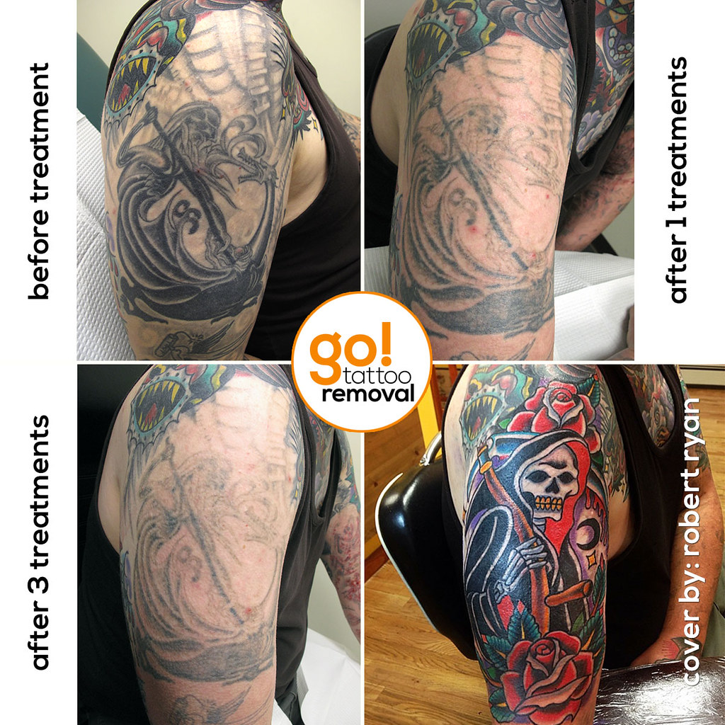 Tattoo Removal To Tattoo Cover Up Go Tattoo Removal