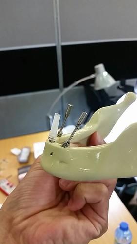 台中權泓牙醫診所-黃泓傑醫師分享牙科新趨勢all-on-4 (1)