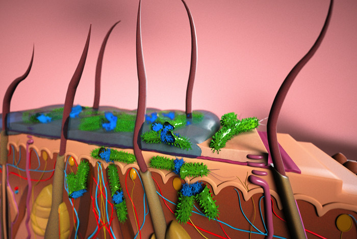 Artist's rendition of a cross section of skin layers (stratum corneum, epidermis and dermis) showing topical application of an ionic liquid for combating a skin-borne bacterial infection. The ionic liquid can be formulated with