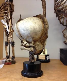 Afrenset hydrocephalisk kranie af nyfødt.