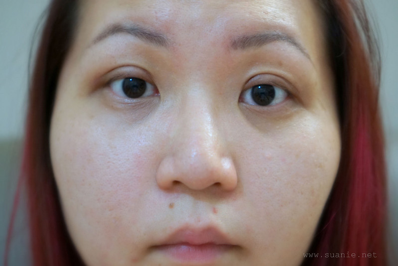 Suanie double eyelid surgery - Day 18_02