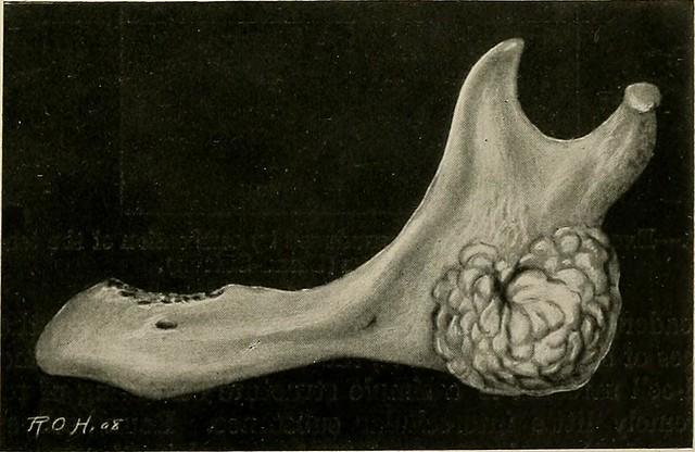 myositis