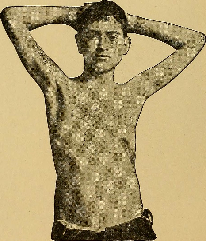 Image from page 105 of Physical diagnosis (1905)