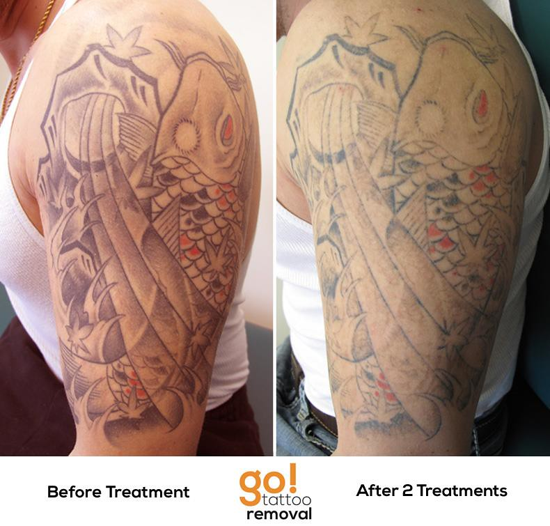 100 top 5 best laser tattoo laser tattoo removal for Tattoo removal maine