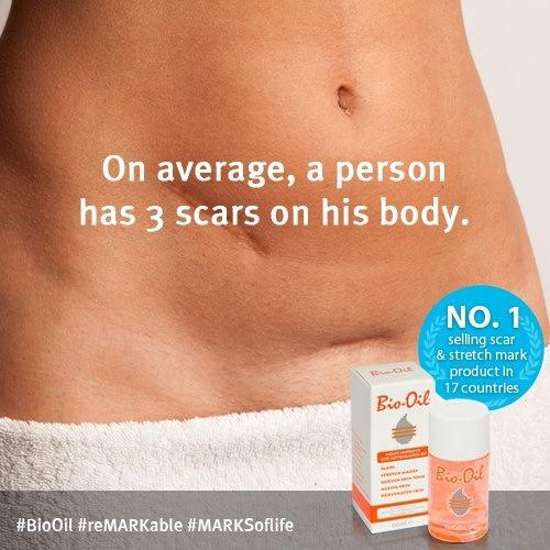 Product Review: Bio Oil, The #1 Scar and Stretch Mark ...