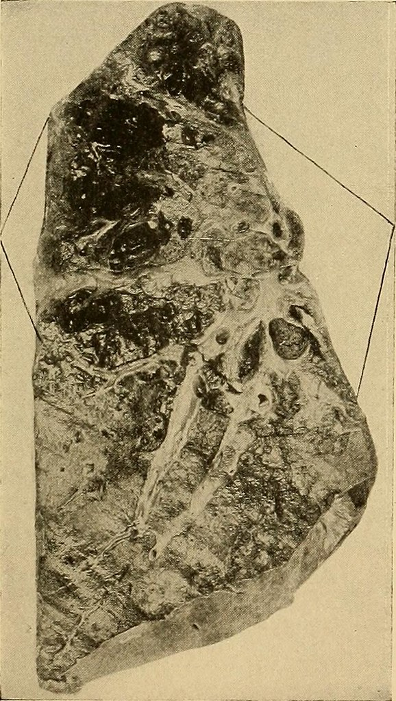 Image from page 212 of Principles and practice of physical diagnosis (1911)