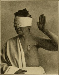 """Image from page 216 of """"Postoperative treatment; an epitome of the general management of postoperative care and treatment of surgical cases as practised by prominent American and European surgeons"""" (1907)"""