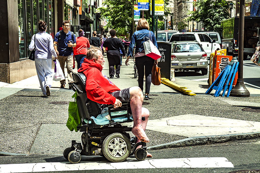 Man-on-wheelchair-with-swollen-feet-on-5-30-14--Center-City