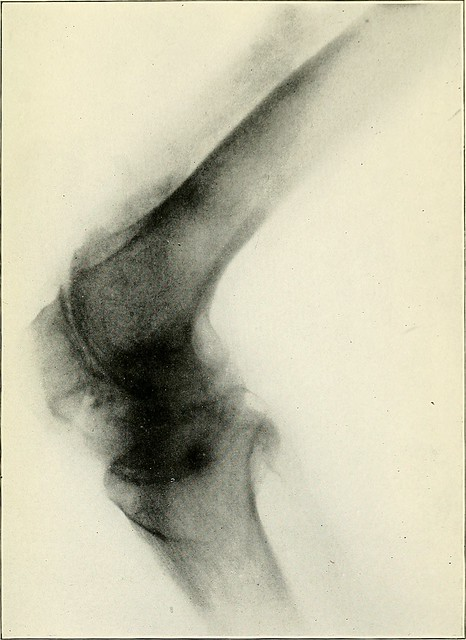 "Image from page 110 of ""The classification and treatment of diseases commonly known as rheumatism"" (1910) from Flickr via Wylio"