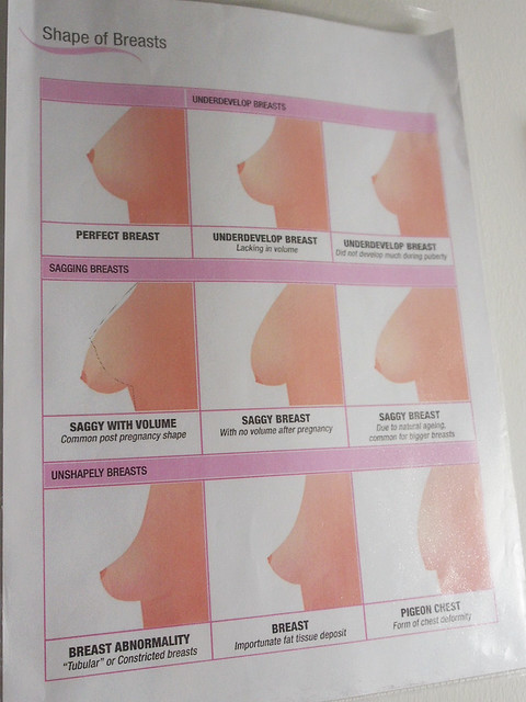 Will Breast development chart